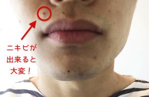 髭剃り ニキビ 口元