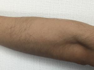 除毛 ブラジリアンワックス 左腕 はがした後