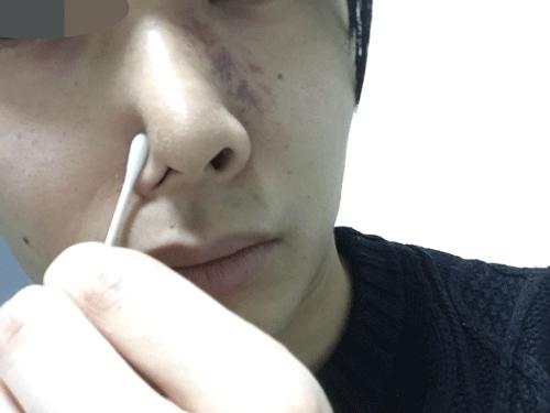 鼻 ホホバ オイル 花粉症(鼻づまり)対策