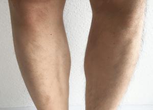パナソニック ボディシェーバー 剃った後 両足