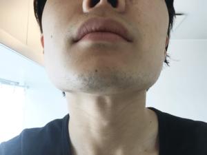 髭 生えない