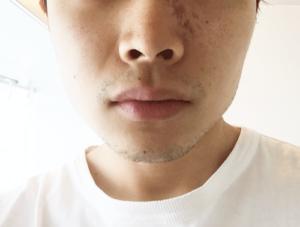 髭 デザイン 1日目 正面