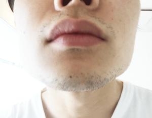 髭 デザイン 1日目 あご