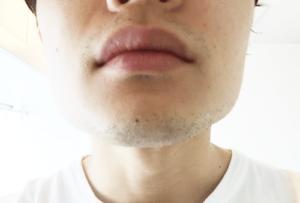 髭 デザイン 1日目 1mm あご