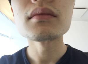 髭 デザイン 1週間 正面