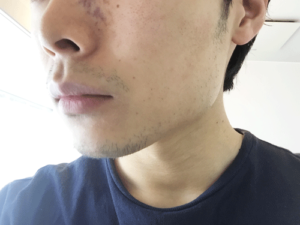 髭 デザイン 1週間 横