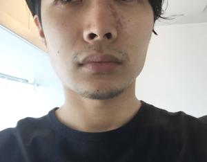 髭 デザイン 2週間 正面