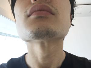 髭 デザイン 2週間 あご