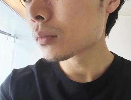 髭 デザイン 2週間 横