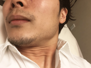 メンズTBC 新宿本店 髭脱毛 体験