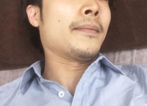 マンチェスタークリニック 鼻毛 体験