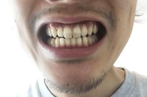 ヴェレダ ソルト 歯茎